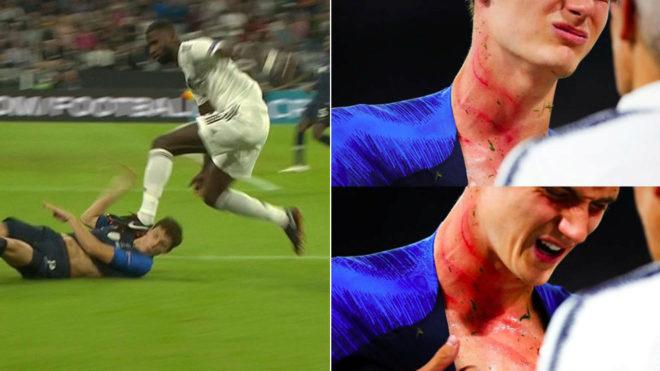 La tremenda marca que le dejó Rüdiger a Pavard