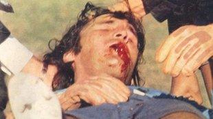 """Hugo Orlando """"el Loco"""" Gatti con la mandíbula fracturada en..."""