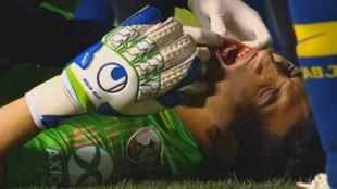 Esteban Andrada fue operado y no podrá jugar por dos meses