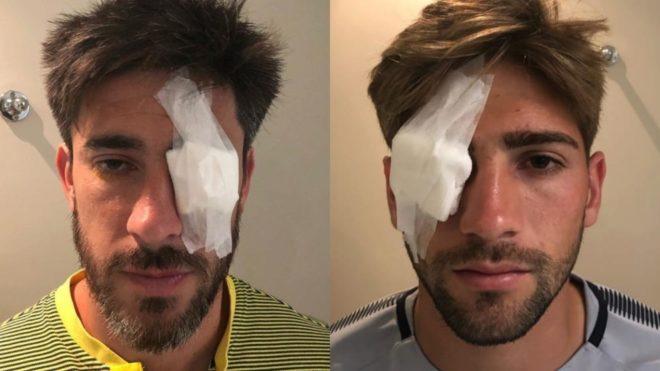Pablo Pérez y Gonzalo Lamardo, con micro úlceras en los ojos