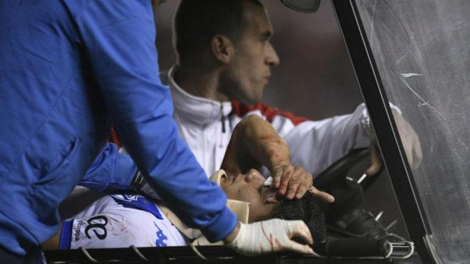 Lucas Robertone sufre un traumatismo de cráneo