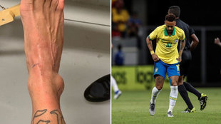 Neymar Junior será baja un mes.