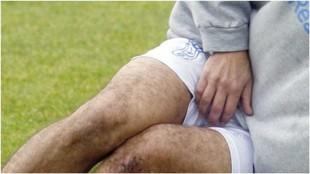 Un futbolista tras recibir un golpe en los testículos.