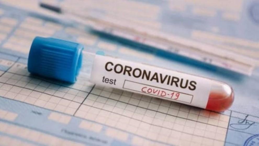 Coronavirus en la Argentina: con diez nuevos fallecimientos son 1.217 las víctimas