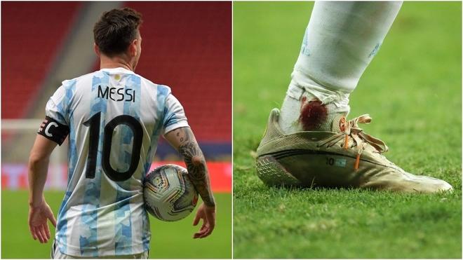 Leo Messi terminó muy cansado y golpeado en el encuentro ante...